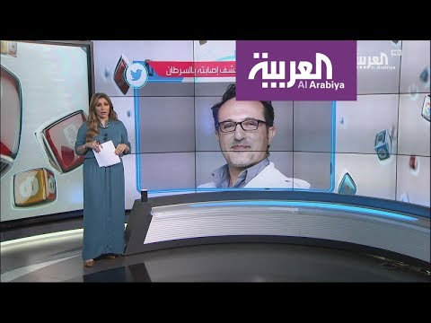 شاهد الإعلامي شريف مدكور يرد على الشامتين في مرضه