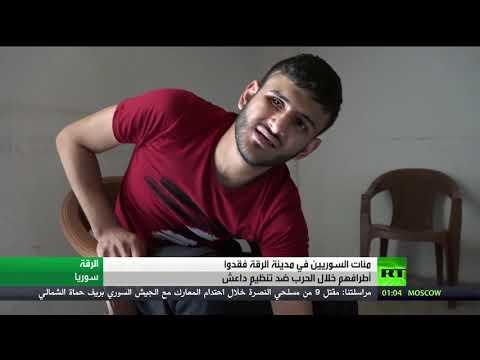المئات يعانون في الرقة السورية من إصابات خطيرة